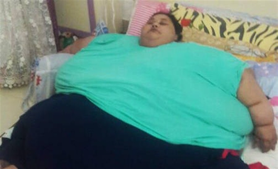 500kg Egyptian woman wins visa for free surgery in India
