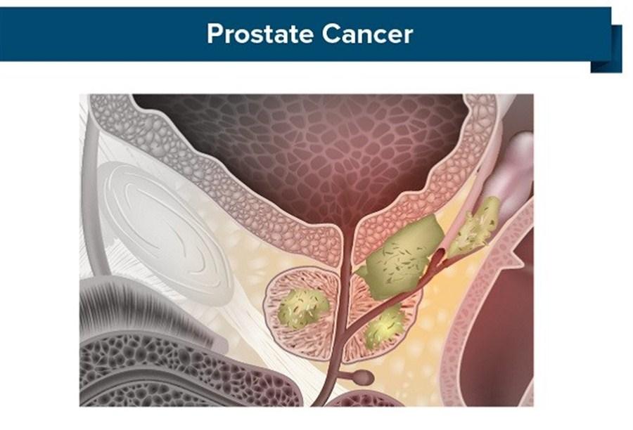 New hope on prostate cancer