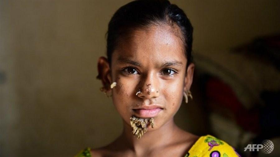 Girl, 10, treated for 'tree man disease'