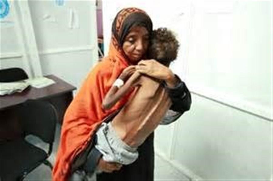 Cholera outbreak in Yemen hits 300,000